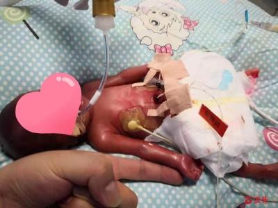 130天后,她从600克长到2850克  龙岗妇幼保健院成功救治一名超未成熟儿