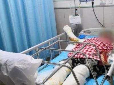 一声响雷! 深圳一女子在家中被雷击倒, 四肢烧伤达三度